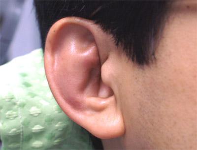 が 痛い の ふち 耳